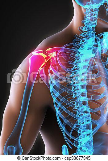 épaule, douloureux, illustration - csp33677345