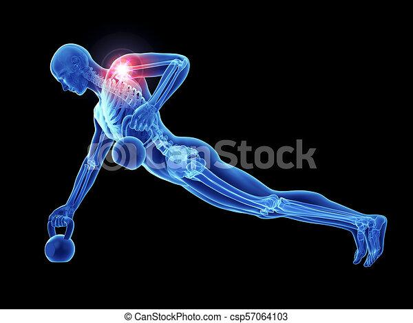 épaule, jointure, athlètes, douloureux - csp57064103