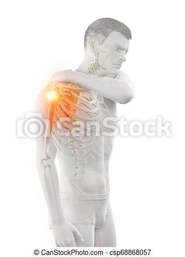 épaule, jointure, avoir, douloureux, homme - csp68868057