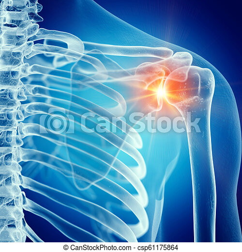 épaule, jointure, douloureux - csp61175864