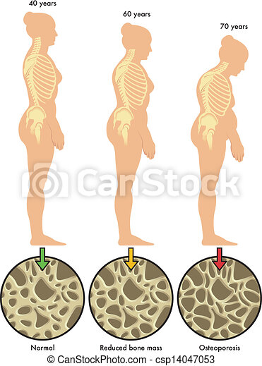 3, ostéoporose - csp14047053