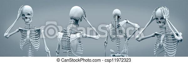 avoir, squelettes, maux tête - csp11972323
