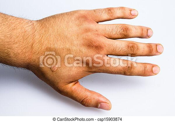 cigarette, brulure, cicatrice, main, homme - csp15903874