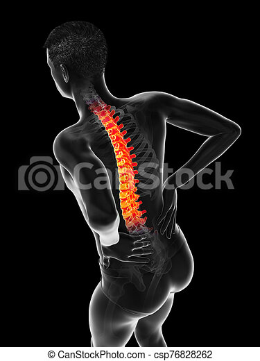 douleur, aigu, dos, homme, avoir - csp76828262
