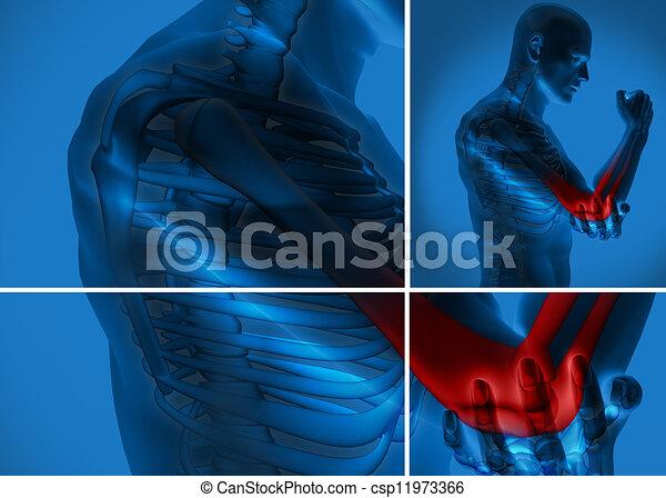 douleur, coude - csp11973366