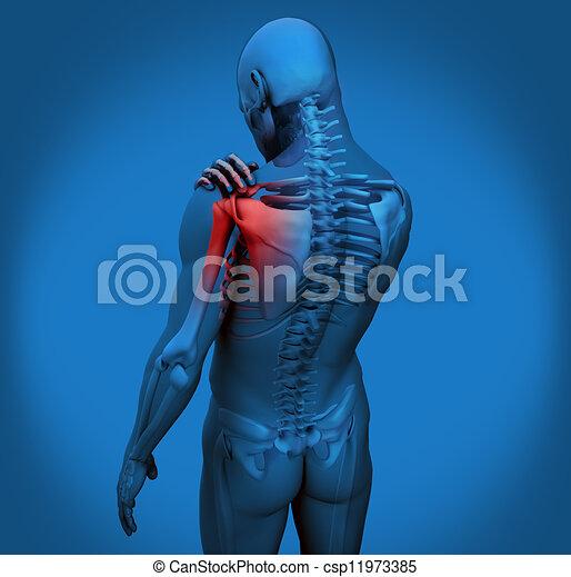 douleur, figure, numérique, épaule - csp11973385