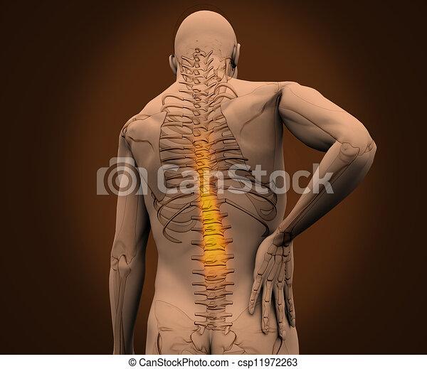 douleur, sien, avoir, numérique, dos, squelette, mis valeur - csp11972263