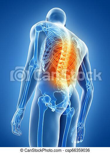 homme, douleur, avoir, dos - csp66359036