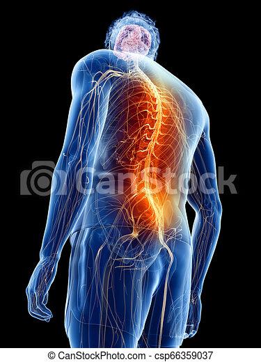 homme, douleur, avoir, dos - csp66359037