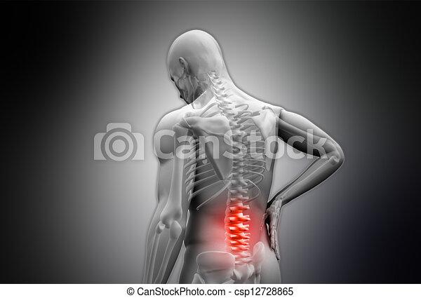 humain, douleur, frottement, numérique, gris, mis valeur, dos, rouges - csp12728865