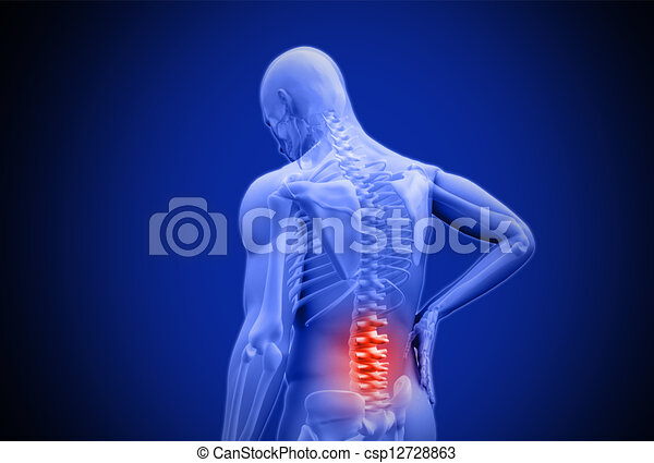 humain, inférieur, douleur, frottement, numérique, mis valeur, bleu, dos, rouges - csp12728863