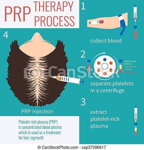 injection, prp, thérapie - csp37096617