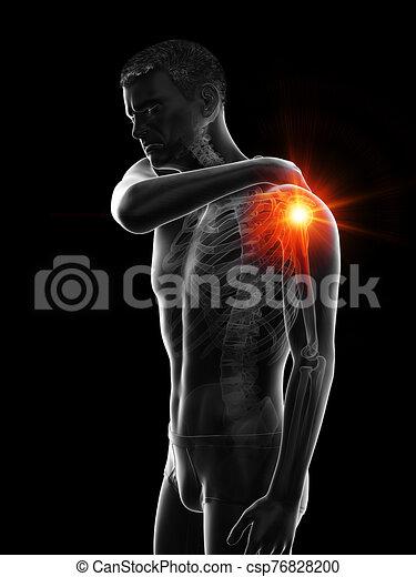 jointure, épaule, homme, avoir, douloureux - csp76828200
