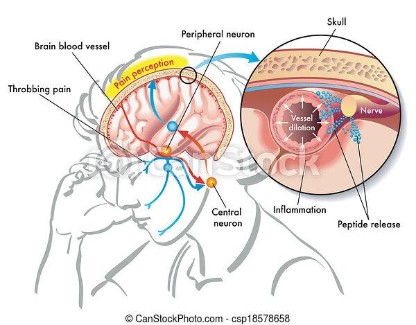 migraine - csp18578658