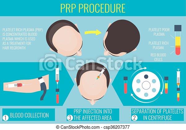 plaquette, plasma, procédure, riche, homme - csp36207377