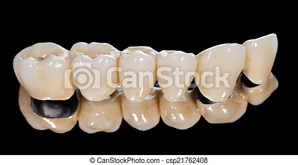 pont, dentaire, céramique - csp21762408