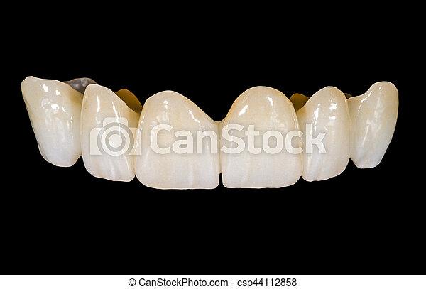 pont, dentaire, céramique - csp44112858